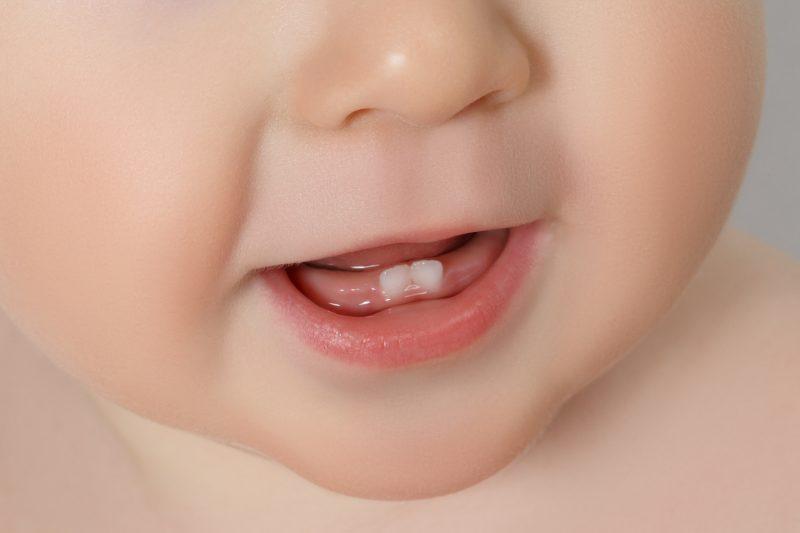 problemi-dentali-bambino